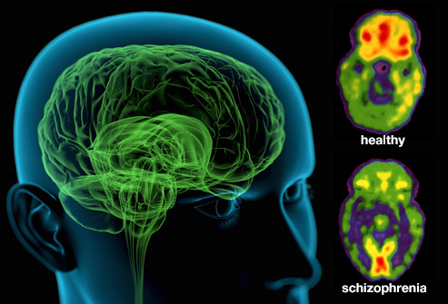 /its-time-we-started-talking-about-schizophrenia-y3cd30cj feature image