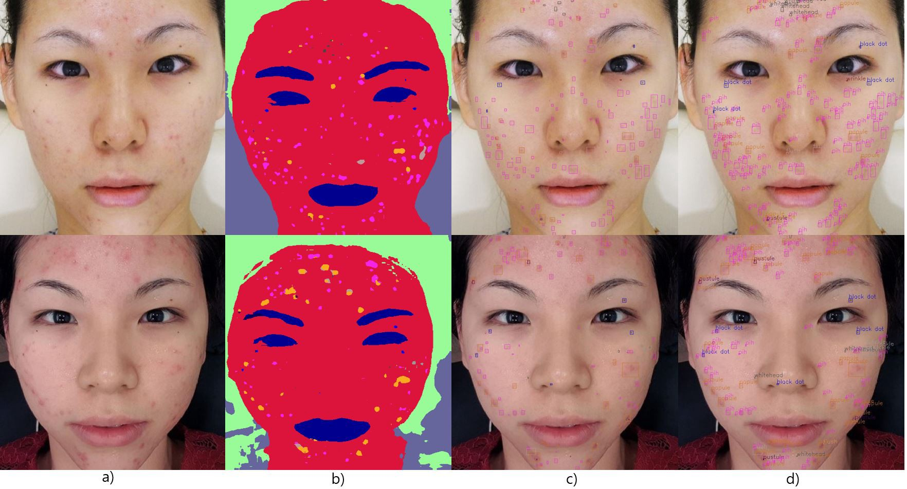 /rethnet-object-by-object-learning-for-detecting-facial-skin-problems-i6k32k2 feature image