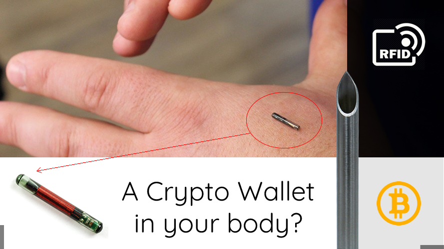 /would-you-implant-a-cryptocurrency-wallet-in-your-body-857149c0f188 feature image